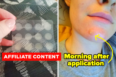 I Tried The Best-Selling Spot Patches Our Readers Can't Get Enough Of – Here's What Happened
