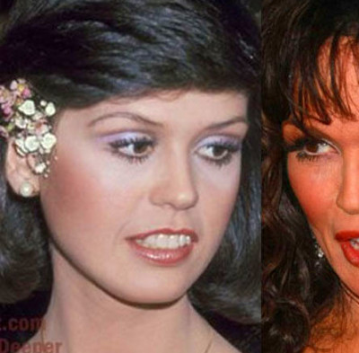 Celebrity Plastic Surgery Before & After (56 pics ...