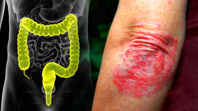 Psoriasis and IBD: Is This Comorbidity for Real?