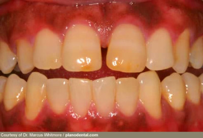 Dental Pictures: Gum Disease, Tongue Problems, Oral Cancer, Tooth Erosion, and More