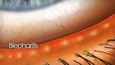 title-eye-disease-blepharitis.jpg