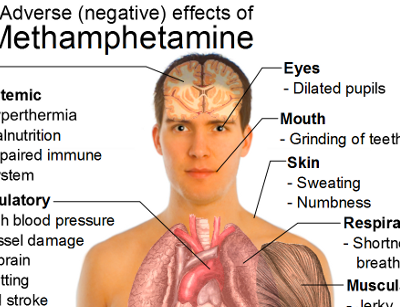 Effects of Methamphetamine | Methamphetamine