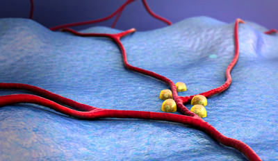 Yale scientists study how some insulin-producing cells ...