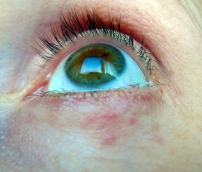 Small red pimples below lower eyelid | Dermatitis And ...