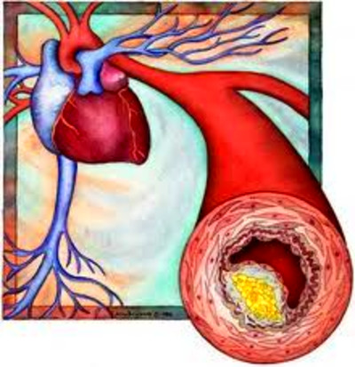 Familial hypercholesterolemia, inherited high cholesterol, leads to ...