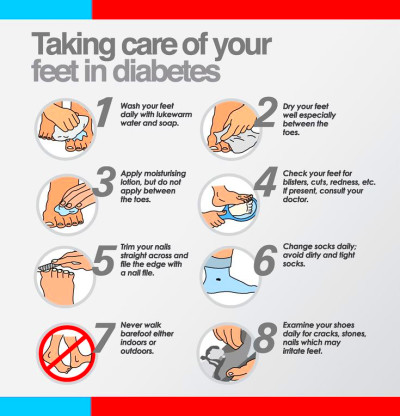 Taking Care of your Feet if Diabetic | Information ...