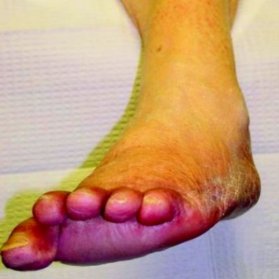 17 Best images about Neuropathy on Pinterest   Diabetic ...