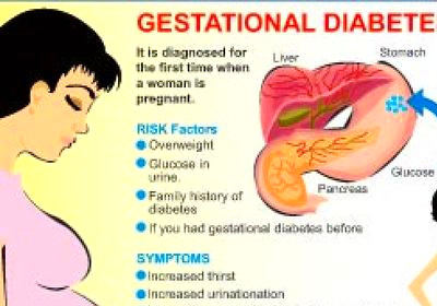... Diet Among Women with Recent Gestational Diabetes – Diabetes Tutor