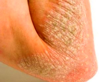 209 best images about Psoriasis Health Care on Pinterest ...