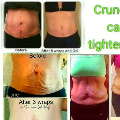 1000+ images about tighten, tone and firm on Pinterest ...