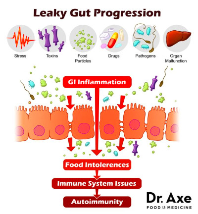 1000+ ideas about Leaky Gut on Pinterest | Health ...