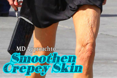 ... Dr. John Layke Recommends to Smoothen Crepey Skin Without Surgery