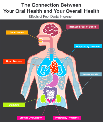 Dentaltown - The connection between your oral health and ...
