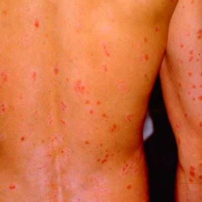 Diabetes often leads to several undesirable skin conditions that cause skin darkening, rashes ...