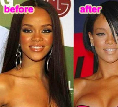 before-after-celebrities-actress-plastic-surgery-breast-implant-photos ...