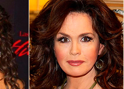 Marie Osmond Plastic surgery Before and After Photo 2013-2014