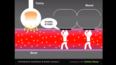 What, exactly, is Insulin Resistance?