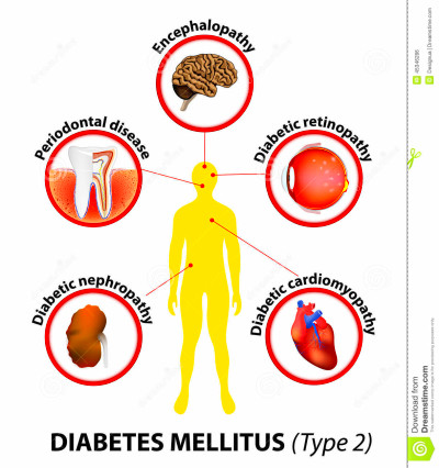 Diabetes Mellitus Affected Organs Cartoon Vector ...