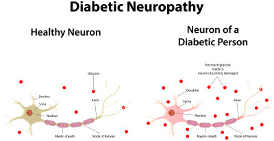 Diabetic Neuropathy: What It Means, How to Treat It ...
