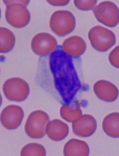 Reactive lymphocyte - Wikipedia