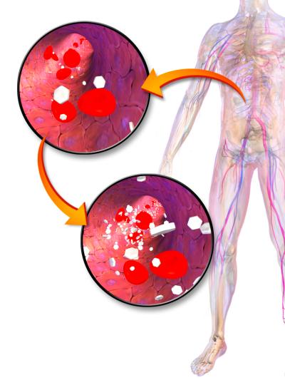 Hyperglycemia - Wikipedia