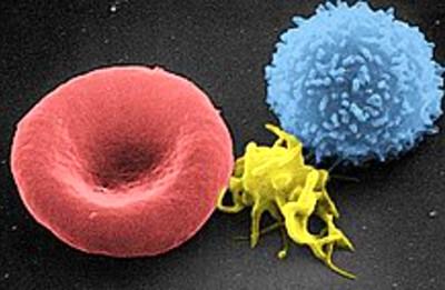 Platelet - Wikipedia