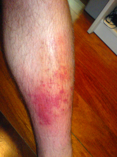 Cellulitis - Wikipedia