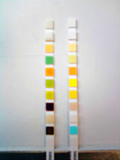 Urine test strip - Wikipedia