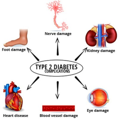 Complications Of Type 2 Diabetes | Health And Medical Information