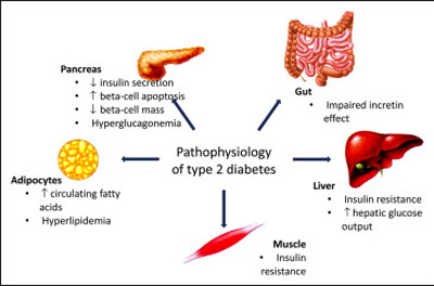 The Early Treatment of Type 2 Diabetes - The American ...