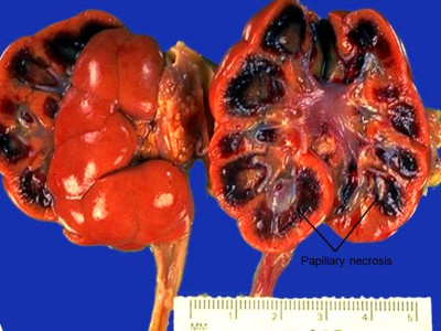 Renal Papillary Necrosis - American Urological Association