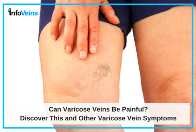 Can Varicose Veins be Painful? | Azura Vascular Care