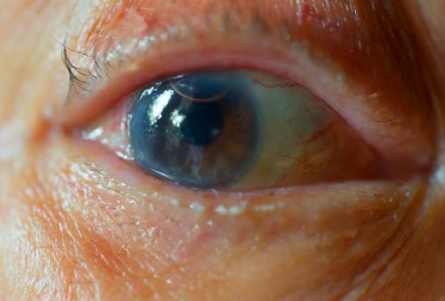 Prevent cataracts naturally: Home remedies and diet