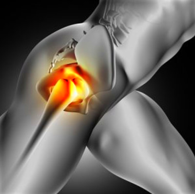 Iliac crest pain: Causes, home remedies, and exercises