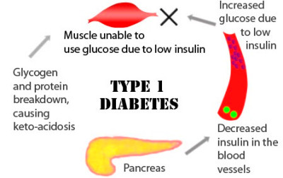 Type 1 Diabetes & Exercise: What are it's Precautions and ...