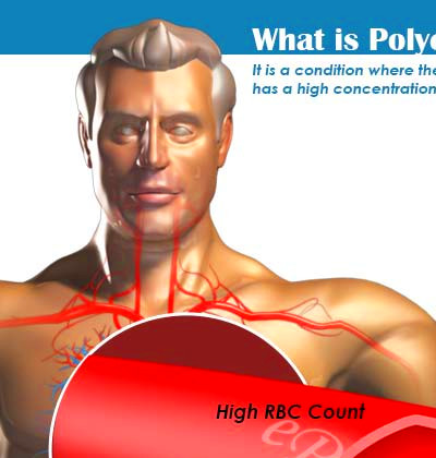 Polycythemia|Types|Causes|Symptoms|Treatment|Complications|Risk Factors|Prognosis