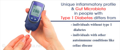 Type 1 Diabetes Linked to Changes in Gut Bacteria and Inflammatory Profile