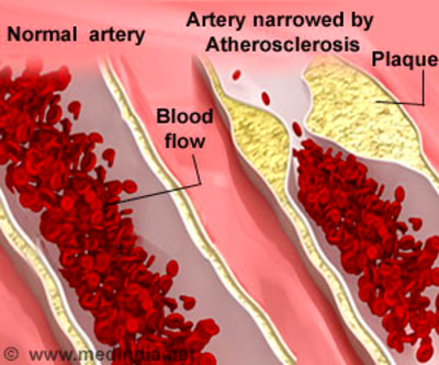 Atherosclerosis - Causes, Symptoms, Prevention & Treatment