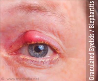 Granulated Eyelids / Blepharitis types signs diagnosis treatment