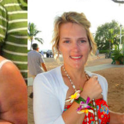 Weight Loss Surgery Photos Before and After New Orleans, LA