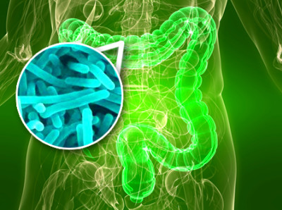 Gut bacteria linked to the development of type 2 diabetes ...