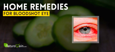 10 Best Home Remedies for Bloodshot Eye to Prevent Red Eyes [Fast]