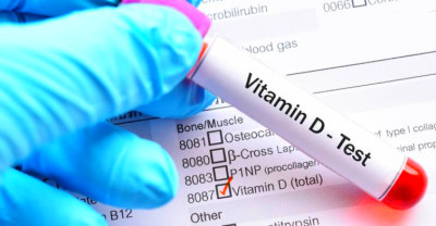 Vitamin D deficiency tied to obesity | New Hope Network