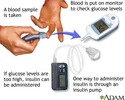 ... their blood s sugar glucose levels after a blood sample is taken and