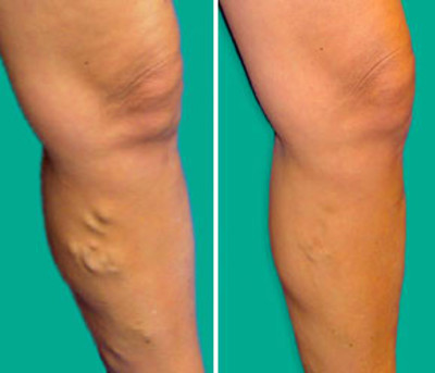 Varicose Veins, Economy Class Syndrome: Cause and Treatment
