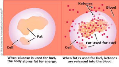 Hyperglycemia and Diabetic Ketoacidosis
