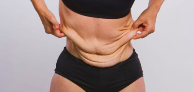 How Can I Fix Skin Elasticity Issues After Weight Loss?