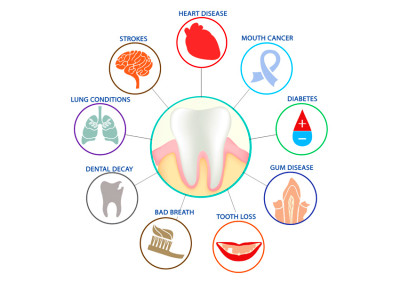 Oral Health Can Affect Your General Health | St. Lawrence Dentistry