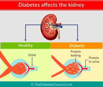 What can you do to prevent diabetes from damaging your kidneys