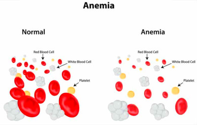 Did you know that over 3 million Americans have anemia?